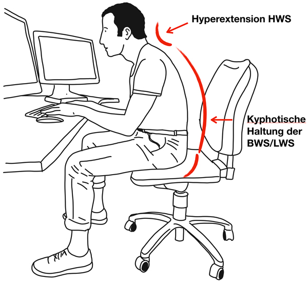 Sitzende Tätigkeit und ihre Auswirkung auf die Wirbelsäule