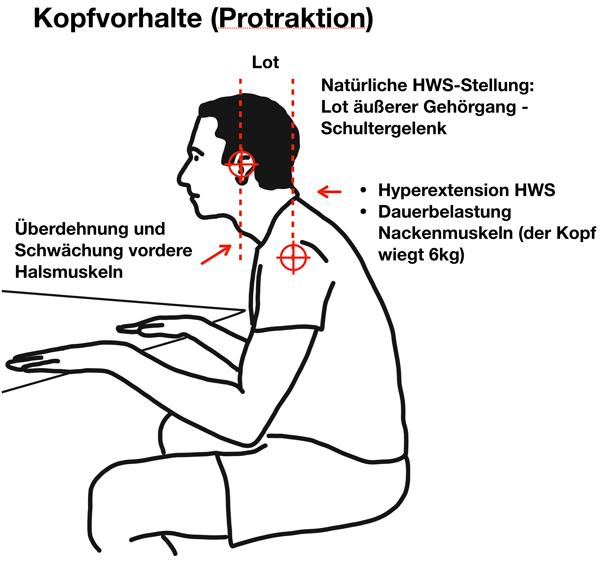 Protraktion, Kopfvorhalte